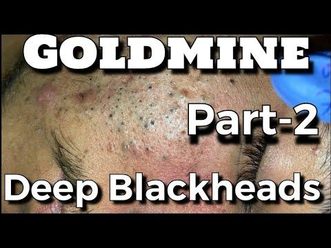 Goldmine Of Deep Blackheads Part-2