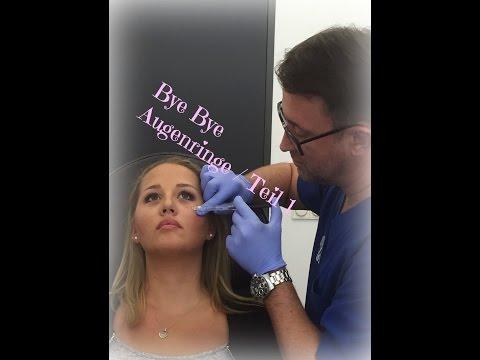 Mein Gang zum Beauty Doc / Augenringe entfernen mit Hyaluron
