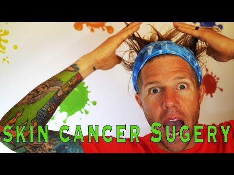 SKIN CANCER SURGERY VLOG #92