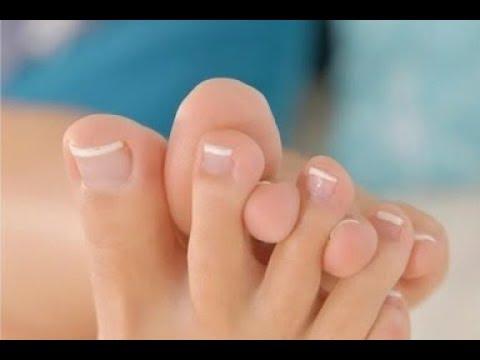 Вопрос: Как вылечить грибок ногтя уксусом?