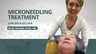 Facial Skin Tightening Treatment Options