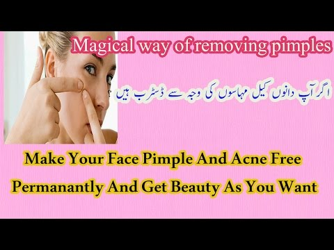 Magical Remedy for Removing Pimples