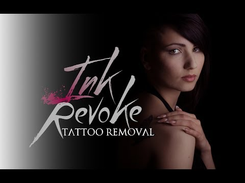 Best Laser for Tattoo Removal: Quanta Laser!