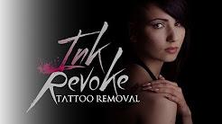 Best Laser for Tattoo Removal: Quanta Laser!