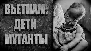 ДЕТИ МУТАНТЫ, ВОЙНА ВО ВЬЕТНАМЕ(Дети мутанты, как следствие ужасов Вьетнамской войны. 3 ИНВАЛИДА, ИЗМЕНИВШИЕ МИР: https://youtu.be/ErSPTrhHXU4 2 БЕЗУМНЫХ..., 2016-01-23T19:55:03.000Z)