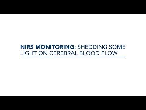 3. NIRS monitoring: shedding some light on cerebral blood flow – Anders Aneman
