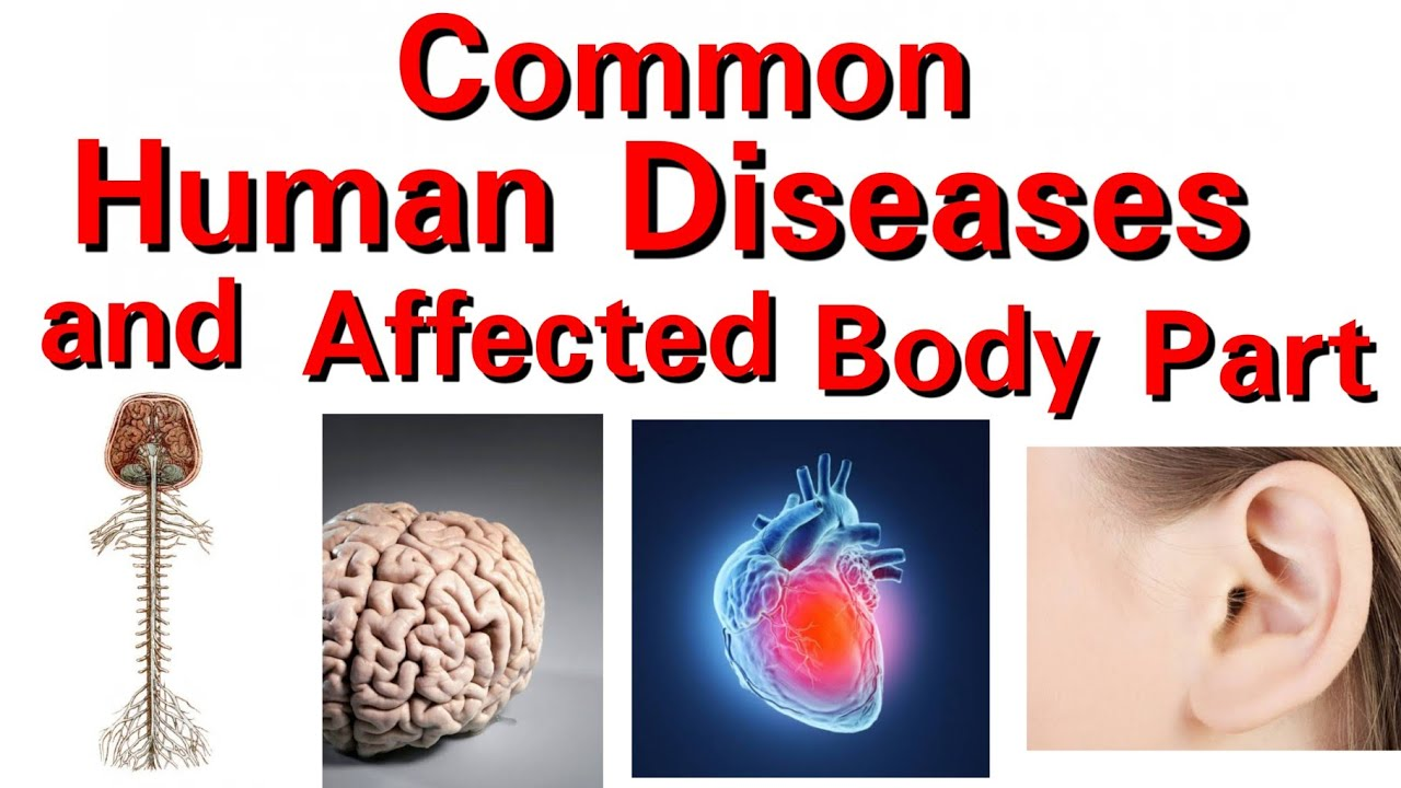 Common Human Diseases and Affected Body Part - YouTube