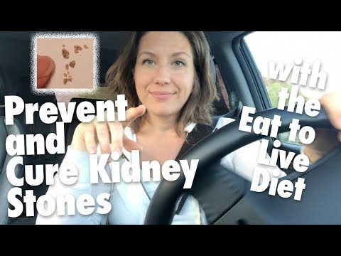 How To Prevent And Cure Kidney Stones With The Eat To Live Nutritarian Diet // + Lithotripsy Details