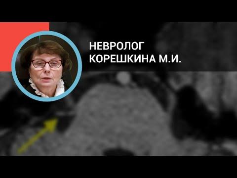 Невролог Корешкина М.И.: Дифференциальная диагностика головных болей