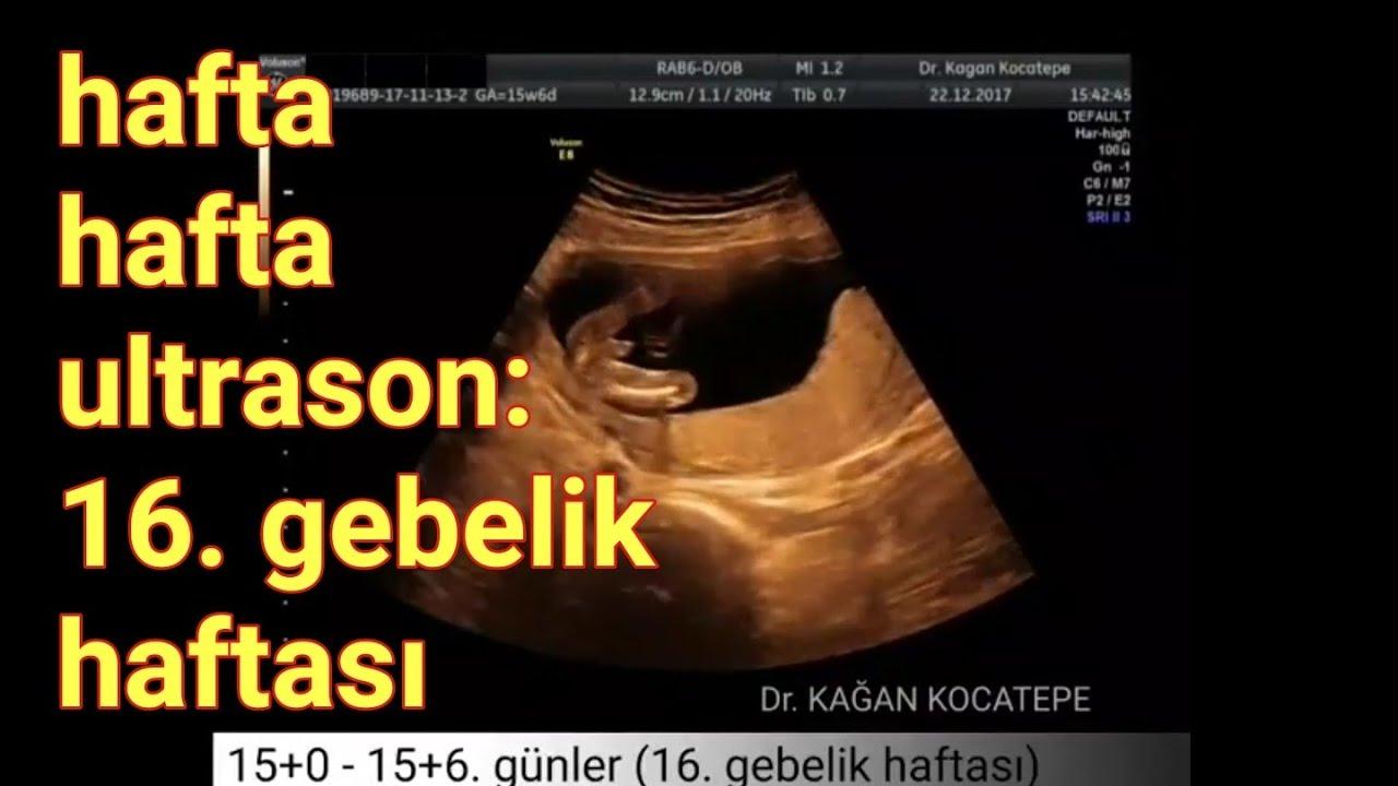 16 Haftalık Hamileyim Bebek Cinsiyet Görüntüsü Anne Karnında Nasıldır