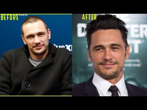 one-of-the-best-hair-transplant-results-ever!-(james-franco)