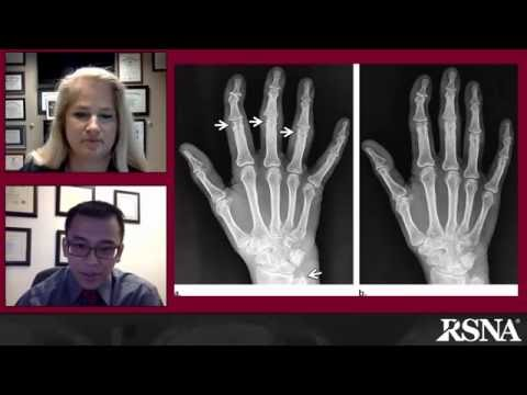 Adult Inflammatory Arthritides: What the Radiologist Should Know thumbnail