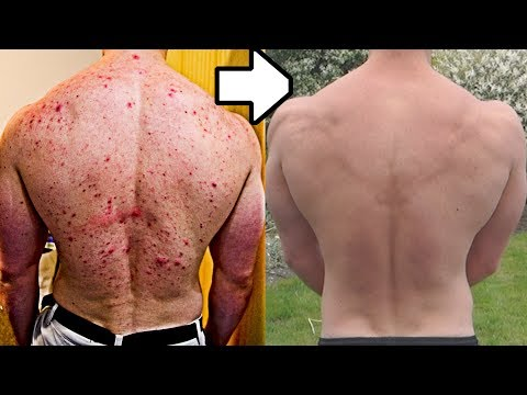 How I Healed Acne With Diet | Before & After Transformation