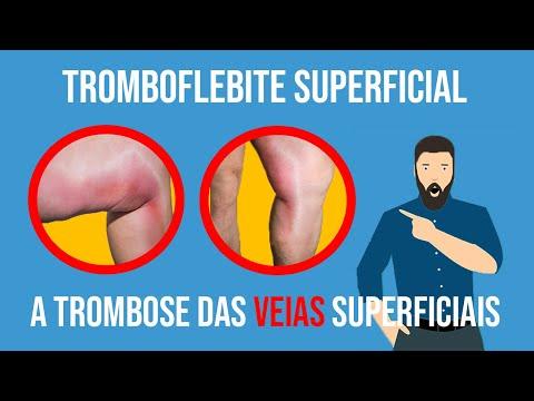 Tromboflebite Superficial: a trombose das veias superficiais