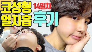 [V-log] 남자 코성형 얼굴 지방흡입 브이로그 2주…