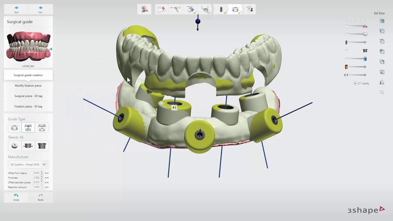 3Shape Implant Studio 2017: Edentulous Case - Surgical Guide - YouTube