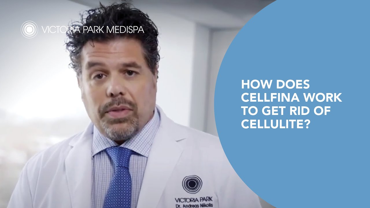 How Does Cellfina Work to Get Rid of Cellulite?