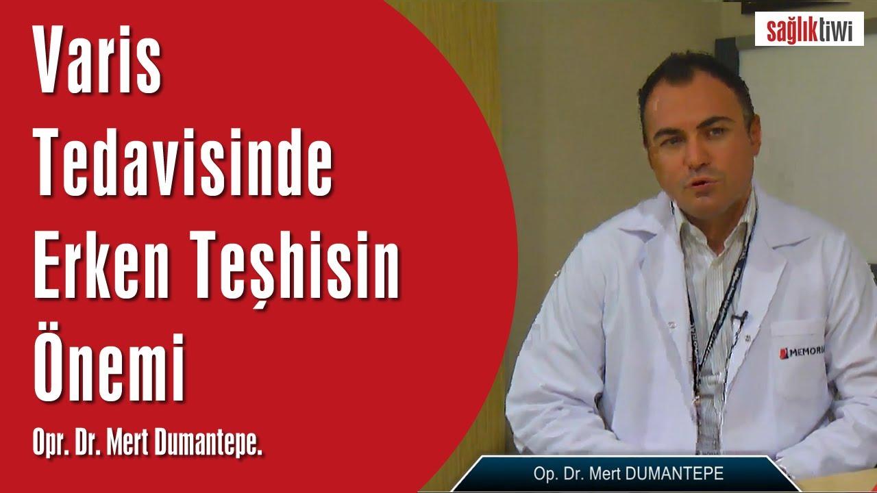Varis Tedavisinde Erken Teşhisin Önemi   Opr. Dr. Mert Dumantepe SaglikTiwi