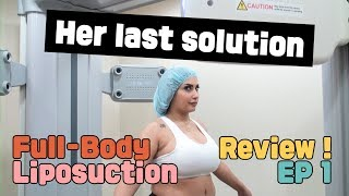 [Liposuction Review01] UAE Youtuber's Full Body Liposuction in Korea - Episode 1