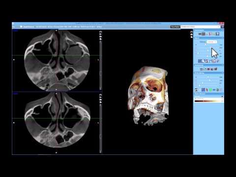 New 3D Superimposition Module in Planmeca Romexis® 4.2