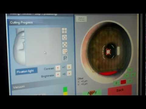 Z-Lasik Bladeless Lasik Advanced Ziemer Femtosecond Laser in Arizona Patient B