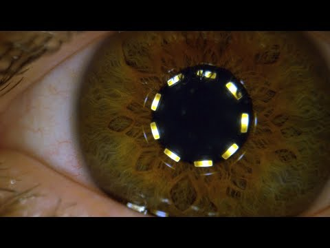 Смотреть Macro Pupil Constricting in Slow Motion - The Slow Mo Guys онлайн