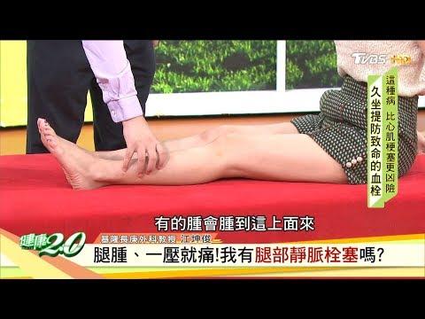 腿腫、一壓就痛!我有腿部靜脈栓塞嗎? 健康2.0