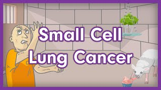 Small cell lung cancer (sclc), also known as carcinoma, is a highly malignant of neuroendocrine nature. it therefore can produce num...