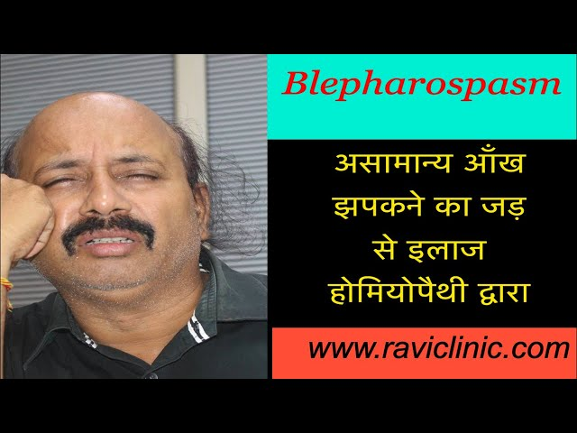 Blepharospasm Cured by Classical homeopathy
