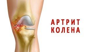 видео Яркие симптомы и лечение бурсита коленного сустава
