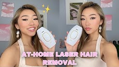 MY AT-HOME LASER HAIR REMOVAL EXPERIENCE