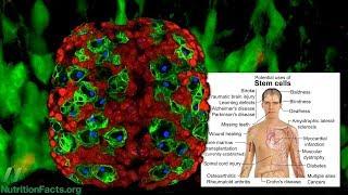Brokolice a její účinky proti kmenovým buňkám rakoviny prsu