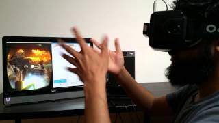 Vivid Vision for Amblyopia