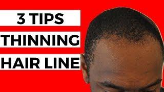3 Tips For THINNING Hair Line | Black Men Balding