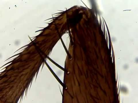 Household Fly Leg Under Microscope 4x,10x magnification ...