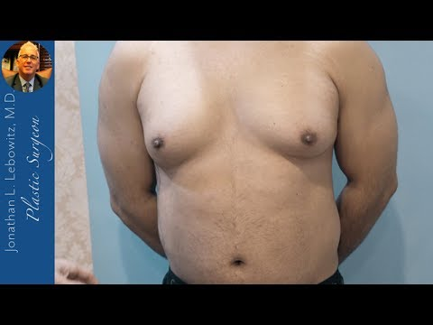 Nipple Day‼️Gynecomastia 🍳VaserLipo Surgery At The Long Island J-Plasma🔥Center By Dr. Lebowitz