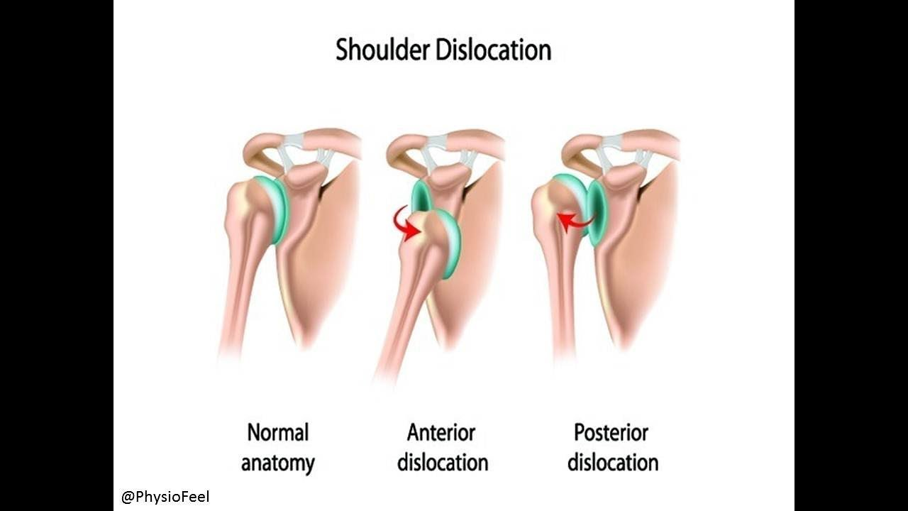 PhysioFeel Shoulder Dislocation - YouTube
