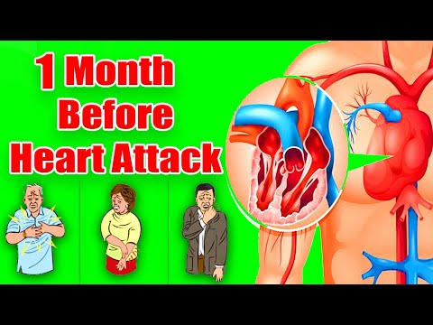 1 Month Before Heart Attack | Signs Your Body Gives You A Month Before A Heart Attack