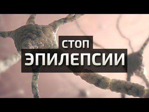Российские биологи узнали, почему возникают судороги при эпилепсии