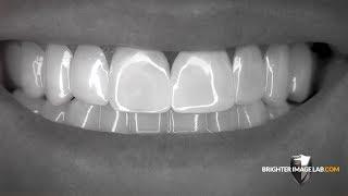 Brighter Image Lab BilVeneers™ The Future of No Dentist Dental Veneers!