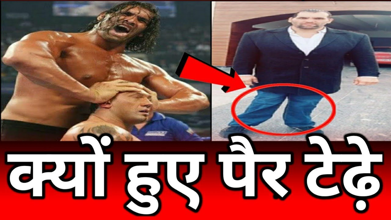 Download What happened to the feet of the great Khali । Why did the great Khali leave wwe । The great khali ।