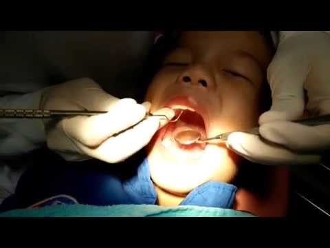 ดาวิน 3 ขวบ ไปหาหมอฟัน