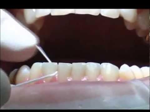 Как правильно обращаться с зубной нитью?
