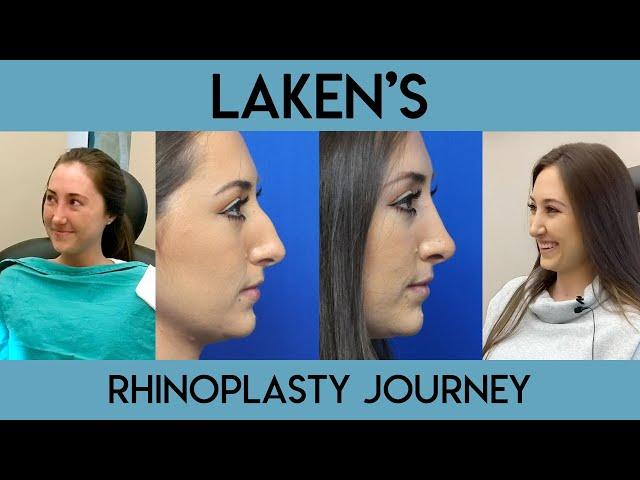 Laken's Rhinoplasty Journey