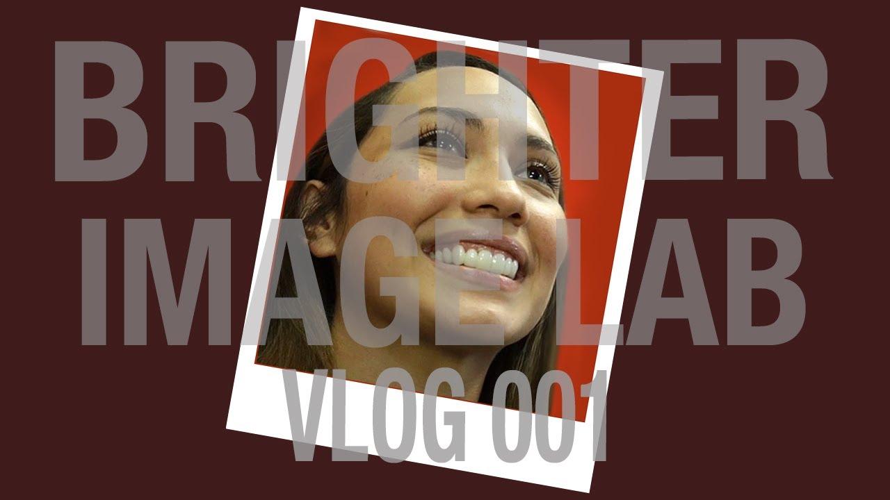 Youtube Video Dental Veneers Up Close Smile Makeover -  Brighter Image Lab - Press On Veneers