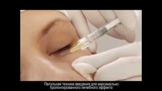 видео Инъекции гиалуроновой кислоты (уколы красоты) – осложнения, стоимость, препараты, показания, фото до и после