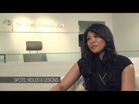 Spots, Moles And Lesions Removal | Toronto Laser Clinic | Dr. Cory Torgerson