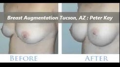Best Breast Augmentation Surgeon in Tucson, AZ