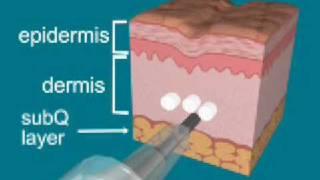 Radiesse Injection Technique Animation