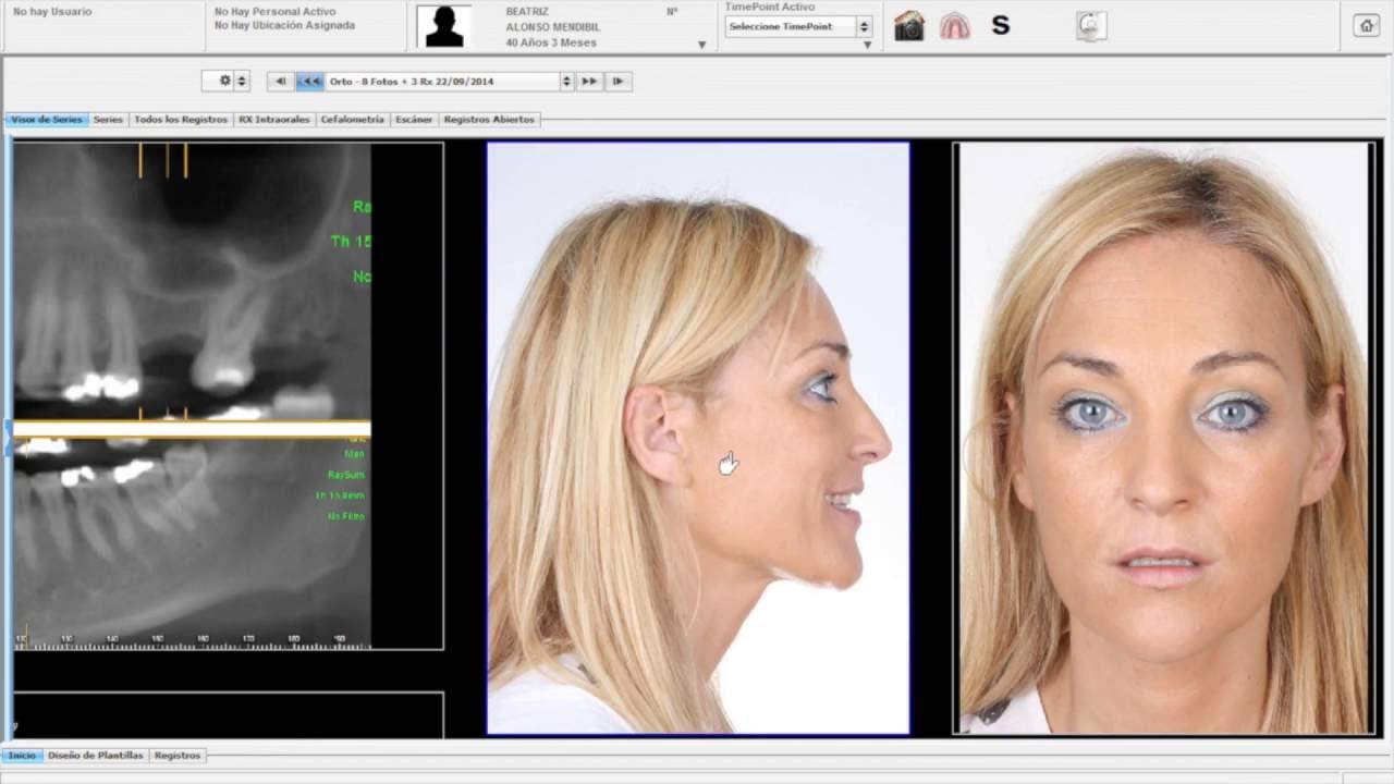 Software Dsd Digital Smile Design Youtube